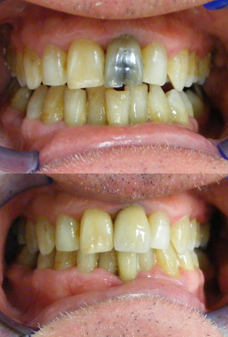 Split tooth with crown.