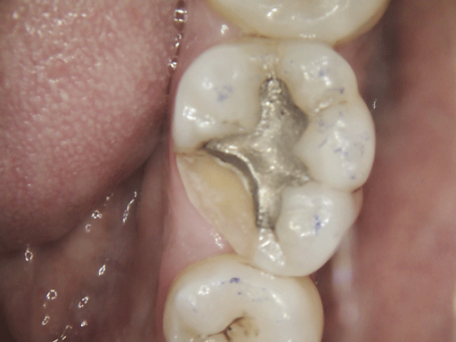Cracked Molar