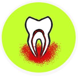Toothacheicon