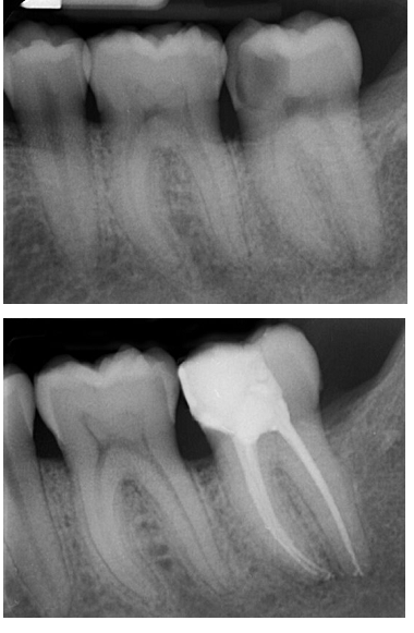 root-canal-case-2
