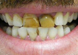 Stained yellow front teeth