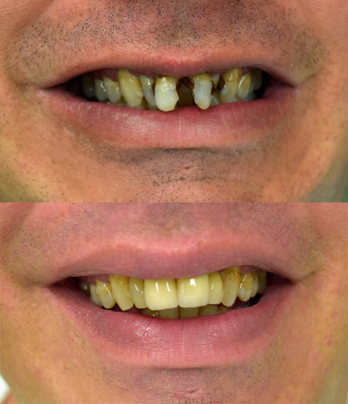 Crowns and veneers Goonellabah Lismore