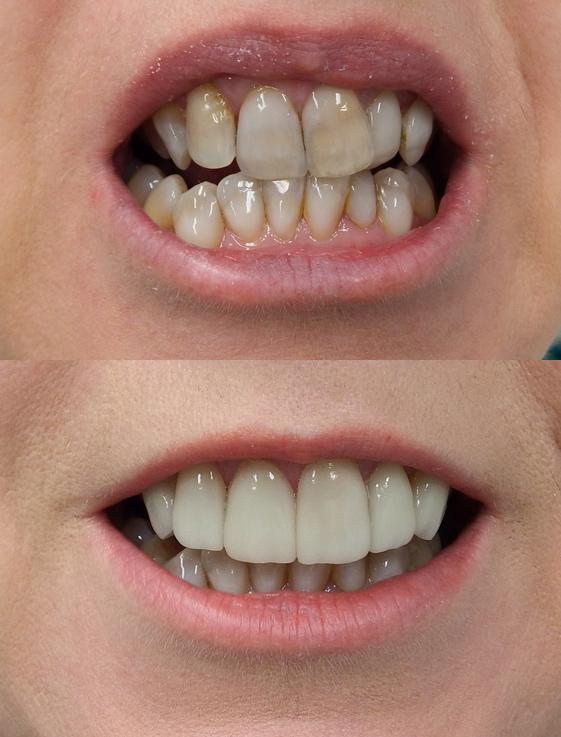 Porcelain veneers at Bytes Dental