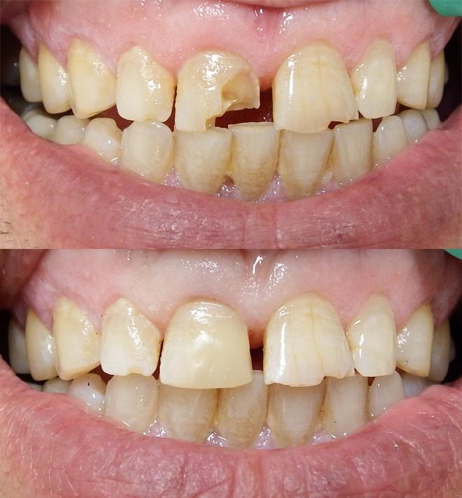 Photo Gallery Bytes Dental Lismore